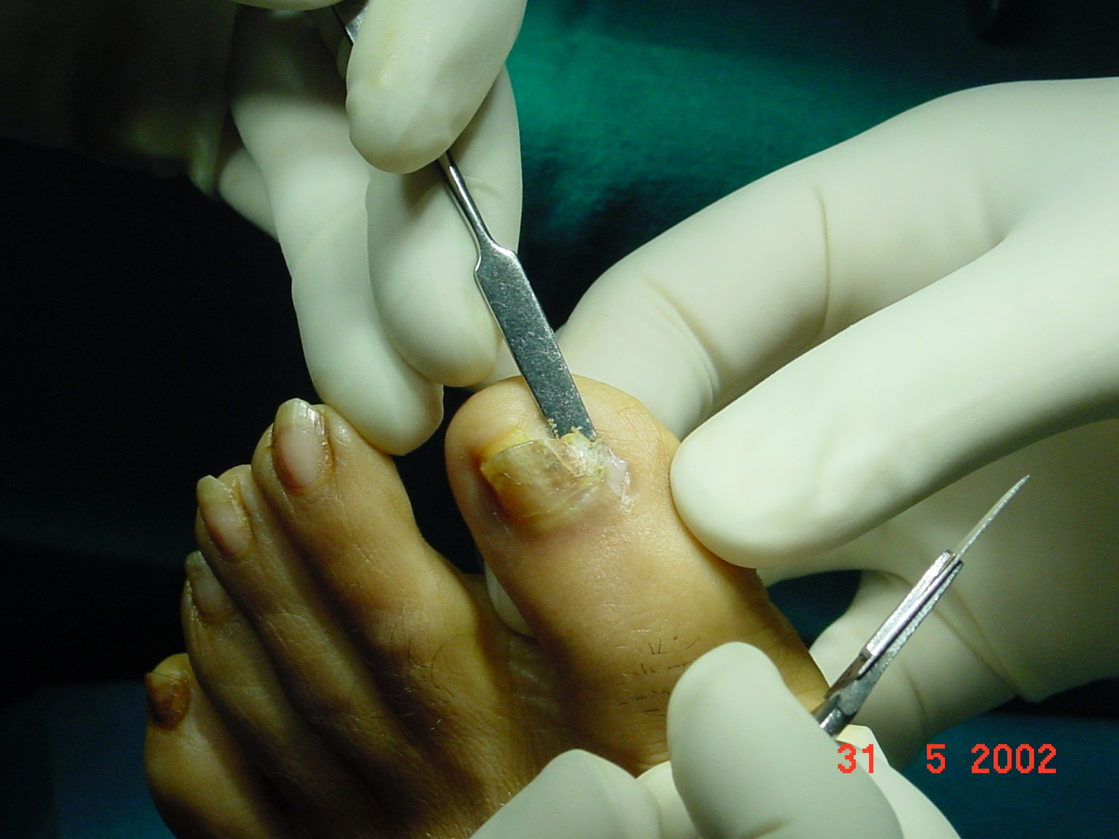 Intra-Operation Picture 1 - Ingrown Toe Nail Mumbai