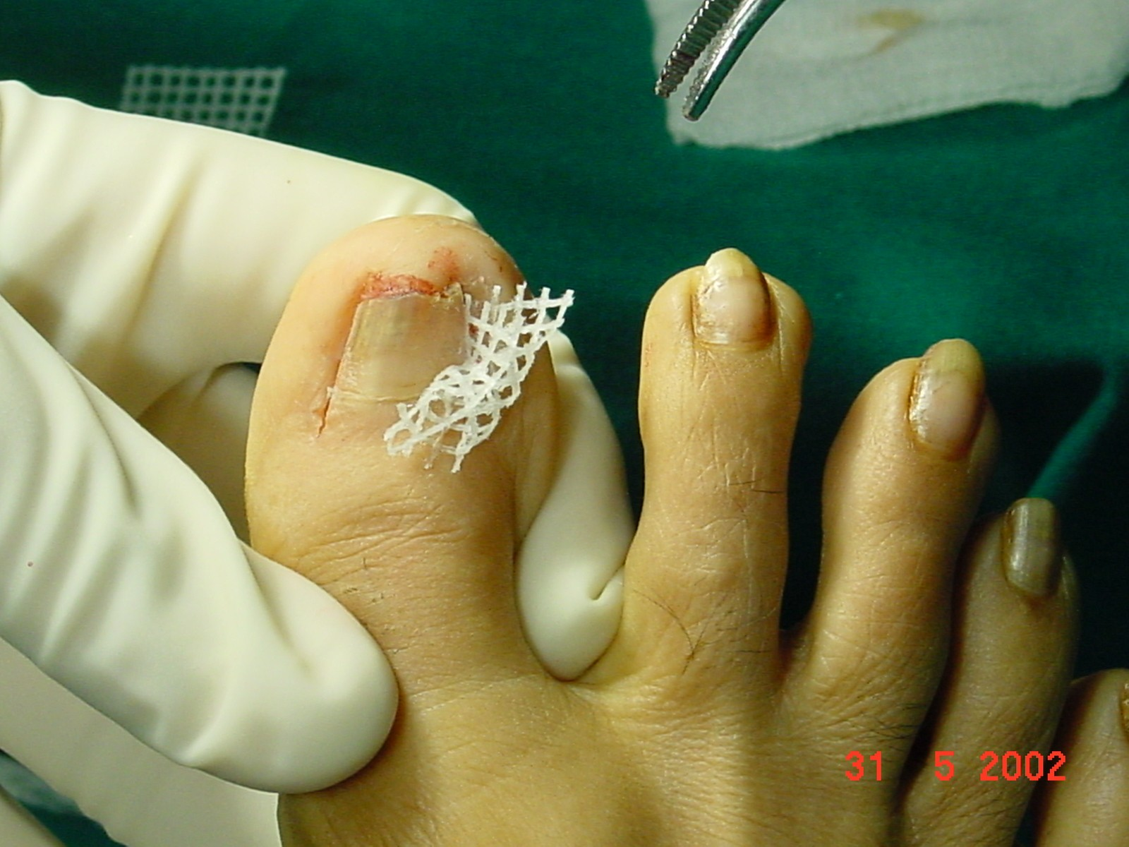 Intra-Operation Picture 3 - Ingrown Toe Nail Mumbai