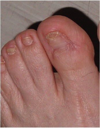 Toenail Postoperative Picture - Ingrown Toe Nail Mumbai